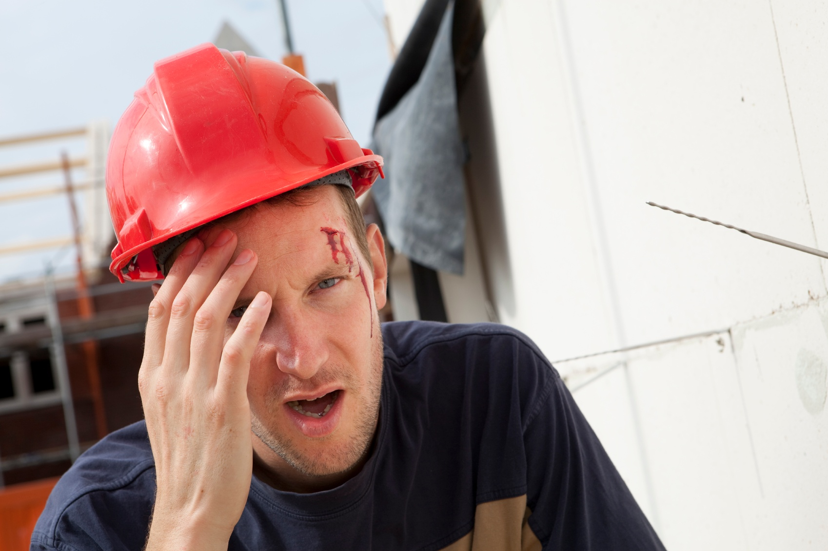 The Most Common Work-Related Injuries
