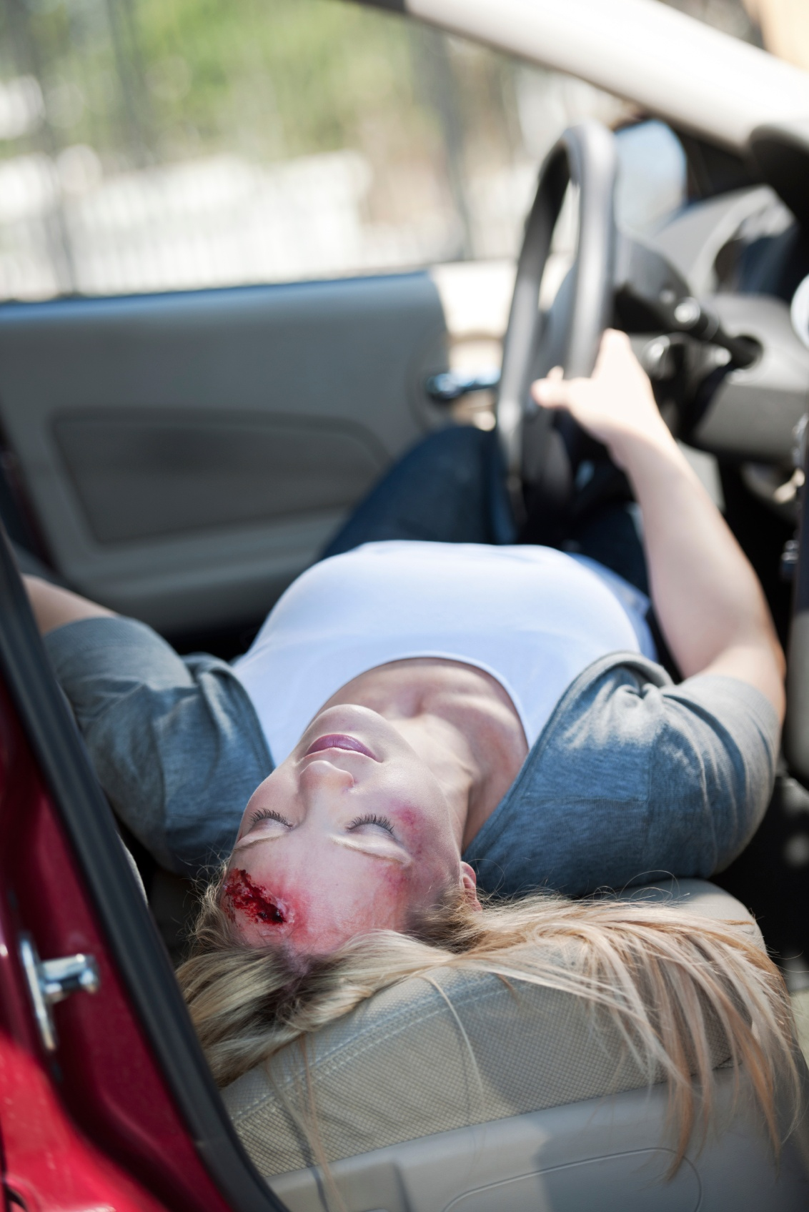Common Bodily Injuries From a Car Accident